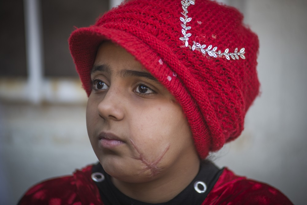 Nada, 10 ans, bénéficiaire de Handicap International en Irak